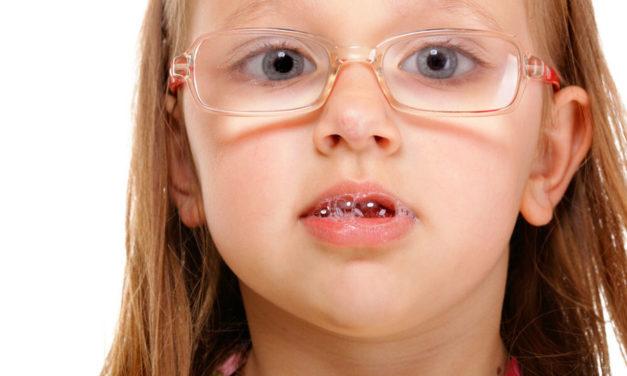 Σιελόρροια: παιχνίδια και κόλπα για να μειώσουμε τα σάλια